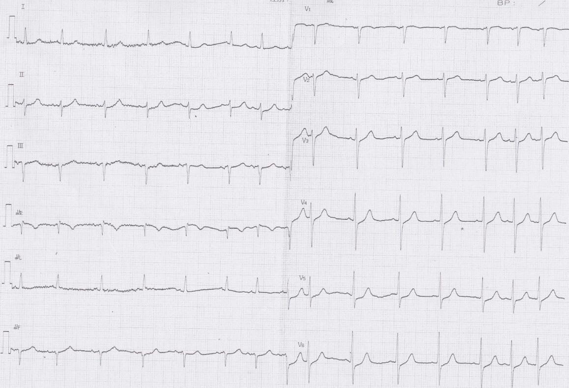 大動脈解離、心タンポナーデ