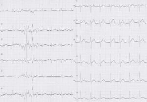 ER症例06、心電図
