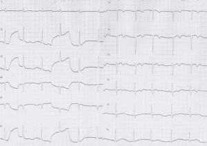 ER症例08、心電図