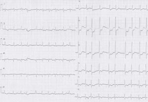 ER症例09、心電図