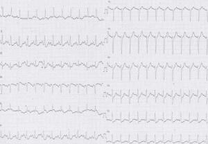 ER症例07、心電図