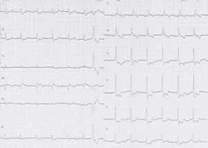 ER症例10、心電図