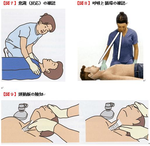 意識の確認、呼吸と循環の確認、頸動脈の触知