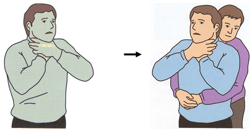 BLSとは|BLSについての要点を整理④|窒息・気道異物