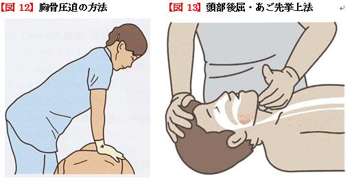 胸骨圧迫の方法、頭部後屈・あご先挙上法