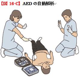 AEDの自動解析