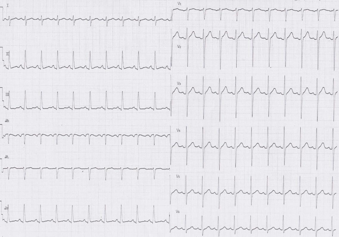 ER症例(11):40歳男性、意識障害