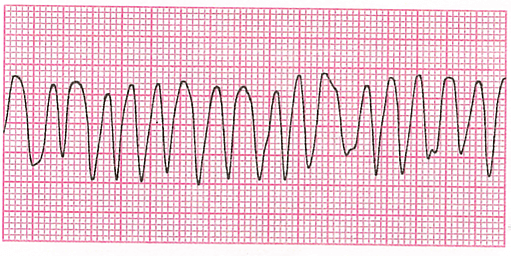 心電図と不整脈 第1回 不整脈の定義と徐脈・頻拍の定義